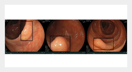 Automatic Polyp Recognition from Colonoscopy Images Based on Bag of Visual Words